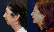 Necklift combined with a chin implants and tightening of the neck muscles.