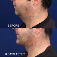 Small incision neck lift with tightening of the neck muscles, as well as placememnt of a chin implant from the same incision. This is 6 days after surgery. There is only a small incision under the chin.
