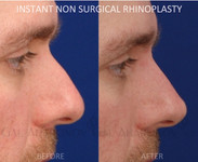 Non surgical rhinoplasty. Filler was used to raise the tip and shorten the appearance of the nose.