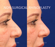 Non Surgical Rhinoplasty raising the tip of the nose and shortening the nose to make it seem smaller.