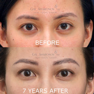 This young patient initially presented with an upper eyelid asymmetry which she did not like. Filler was used to even out her eyelid creases and add more fullness. She is shown 7 YEARS after treatment with minimal touchups after the first treatment.