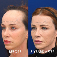 The same patient is now shown over 8 YEARS after her surgery. The hairline has remained stable for all these years. She credits the surgery as being the greatest thing that has improved her self confidence and self esteem.