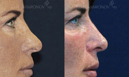 Non surgical rhinoplasty. Filler was used to raise the dorsum to balance the nose. The patient has a history of a previous nose job performed by another surgeon. When the bridge of the nose is too low, it makes the nasal tip seem larger and more prominent. Raising the bridge of the nose with fillers can balance the nose and make the tip seem smaller. This picture was taken about a week after treatment.
