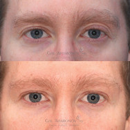 Correction of upper eyelid asymmetry by using filler to restore volume to the deflated eyelid skin. More volume was placed in the deficiant side to even out the volume and skin creases.