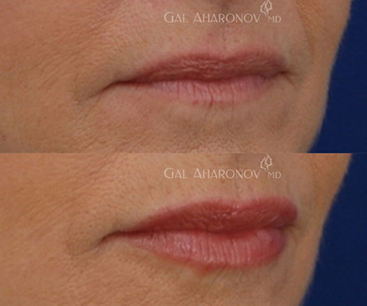 lip_filler_lip_augmentation_lip_injectio