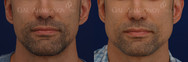 Jaw implants otherwise known as angle of the mandible implants. The extra width in his jaw helps create a more masculine appearance.