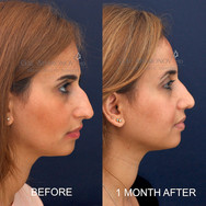 Rhinoplasty does not have to be all or nothing. Subtle changes can be made for those who do not desire a huge transformation. This young lady wanted to keep the character of her nose, but just deaccentuated. She is about 1 month after her rhinoplasty. The nose is still a bit swollen at this point, but she is already very happy with the subtle improvement she was after.