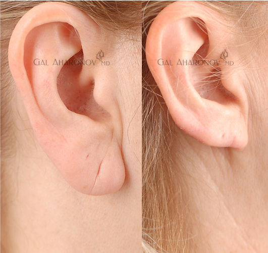 ear-lobe-reduction-2.jpg