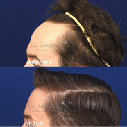 One stage hairline lowering surgery.