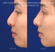 Non Surgical Rhinoplasty combined with non surgical chin augmentation. This pretty girl had a flat tip with lack of projection. Filler was used to increase tip projection as well as chin projection.