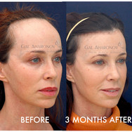 This beautiful lady was bothered by the size of her forehead for her entire life and was not aware anything could be done about it. She was reffered by a friend. She underwent a one stage hairline lowering using FROST. Her she is shown just 3 MONTHS after her surgery.