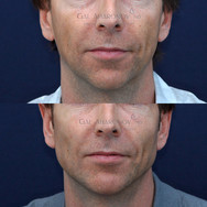 This patient complained of a weak jaw and chin. Facial filler was used to enhance his jaw and neck line as well as enlarge his chin. This is a simple in office procedure that takes just a few minutes.