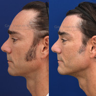 Using filler to augment the chin and jaw without surgery.