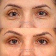 Filler for eyelid restoration.