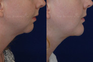 Chin implant combined with a necklift just 6 days after surgery.