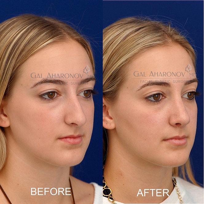 rhinoplasty-surgeon-beverly-hills-nose-s