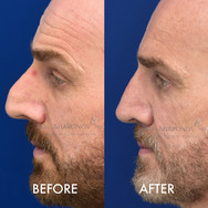 Rhinoplasty to improve shape and function of nose. Patient had significant breathing problems which were also corrected with the surgery.