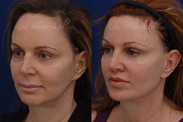 This patient was unhappy with the length of her upper lip. A surgical upper lip lift was performed to shorten her upper lip. This is one week afterwards. She also had filler placed around her face and eyes to improve her facial balance. Her jowls have been minimized by addressing some of the volume loss with fillers. She also had a forehead reduction previously.