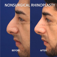 Nonsurgical Rhinoplasty in a man who did not want surgery. Filler was used to create a softer less prominent nose.