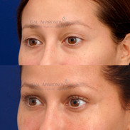 Non Surgical eyelid filler to improve eyelid and brow deflation.