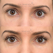 This patient complained of brow deflation with aging. Filler was used to add volume to the brow area to reinflate it. This gave her a bit of brow lift as well.