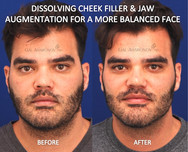 This gentleman had filler injected to his cheeks elsewhere, leaving his cheeks looking chubby. Filler was dissolved in the cheeks and added to the jaw to create better balance.
