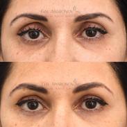 Upper eyelid filler.