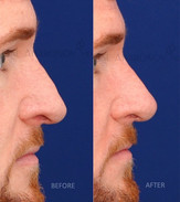 Nonsurgical rhinoplasty to raise the tip of the nose and balance a nose that's had a previous rhinoplasty.