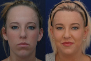 One Stage Forehead Reduction Surgery: About 5 YEARS after surgery. The patient's hairline was lowered by about 1.5 inches in one stage WITHOUT a tissue expander. She also had a small amount of hair grafting to fill in the thickness of her temples.