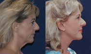 Facelift and necklift surgery to improve lax tissues in the face and neck. This is about 1 year after surgery.