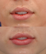 Lip Augmentation with filler
