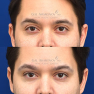 This patient desired more fullness around his eye with the hunter eye appearance. Filler was placed in his upper eyelid and eyebrow.