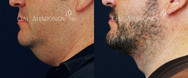 Small incision neck lift with tightening of the neck muscles, as well as liposuction of the neck. There is only a small incision under the chin.