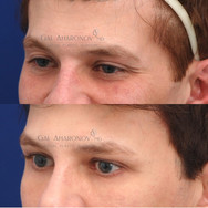 Temple filler combined with upper eyelid filler to address aging changes and volume deflation.