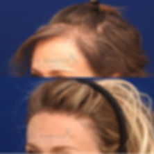 revision-forehead-reduction-surgery-3.jp