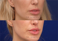 This is 4 months after a surgical upper lip lift to shorten the length of the upper lip. Surgical lip lifts are performed by making an incision right under the nostrils and trimming a piece of the upper lip away. This makes the distance between the nose and upper lip shorter.