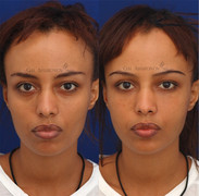 Temple filler combined with global volumization to make the face appear fuller.