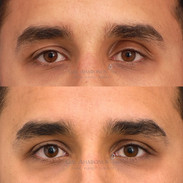 Correction of eyelid asymmetry using filler. The patient was more hollow and sunken on his left side. Filler was used to lower the crease on the left, and reinflate some of the brow fat on both sides.