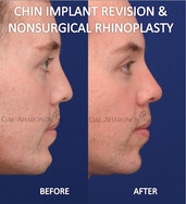 Non surgical rhinoplasty. This patient never had any previous nose surgery but was complaining of a flat nose. Filler was used to increase the projection of the tip leading to better balance in his nose even though the nose is bigger. This is immediately after injection of the nose. Previously, he had undergone removal and replacement of a chin implant also by Dr. Aharonov.
