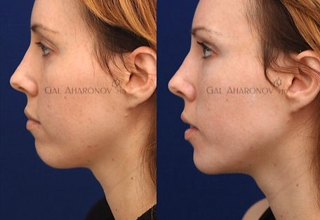 chin_filler_jaw_augmentation_non_surgica
