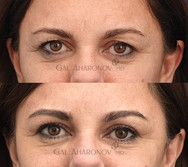 Upper eyelid surgery to remove excess upper eyelid.