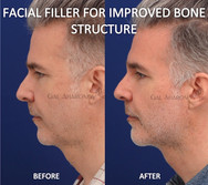 This gentleman complained about having a droopy face and looking tired and older. Filler was used to create better bone structure to his face. Filler was also placed along his jawline to lift his neck.