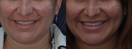 Dimple Surgery on LEFT cheek.