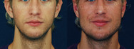 Jaw implants otherwise known as angle of the mandible implants. The extra width in his jaw helps balance out his face.