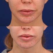 This is 2 months after a surgical upper lip lift to shorten the length of the upper lip. Surgical lip lifts are performed by making an incision right under the nostrils and trimming a piece of the upper lip away. This makes the distance between the nose and upper lip shorter.