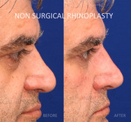 Non surgical rhinoplasty. Filler was used to raise the dorsum and the tip to balance the nose. The cheeks and undereye area were also treated. When the bridge of the nose is too low, it makes the nasal tip seem larger and more prominent. Raising the bridge of the nose with fillers can balance the nose and make the tip seem smaller.