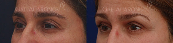 upper_eyelid_hollowness_orbital_fat_loss