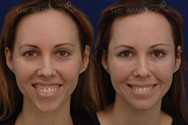 Gummy smile treatment with neurotoxin. The patient also had facial filler.