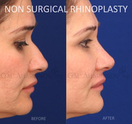 Non Surgical Rhinoplasty smoothing out the bump on the nose and raising the tip with filler.