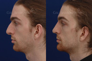 Revision rhinoplasty for droopy tip and prominent hump ONE MONTH after surgery. This patient had 2 previous rhinoplasty and was not happy with the results. A revision rhinoplasty was performed to reduce the bridge of his nose and reshape the tip so it would be less droopy. He still has a strong nose yet is more aesthetically balanced. The patient also had angle of the mandible implants placed and a small amount of filler between his eyebrows to reduce the appearance of shadowing.